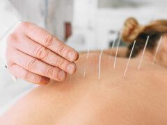 acupunctuur Purmerend